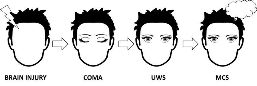 Новую диагностику пациентов с хроническими нарушениями сознания разработали в УрФУ