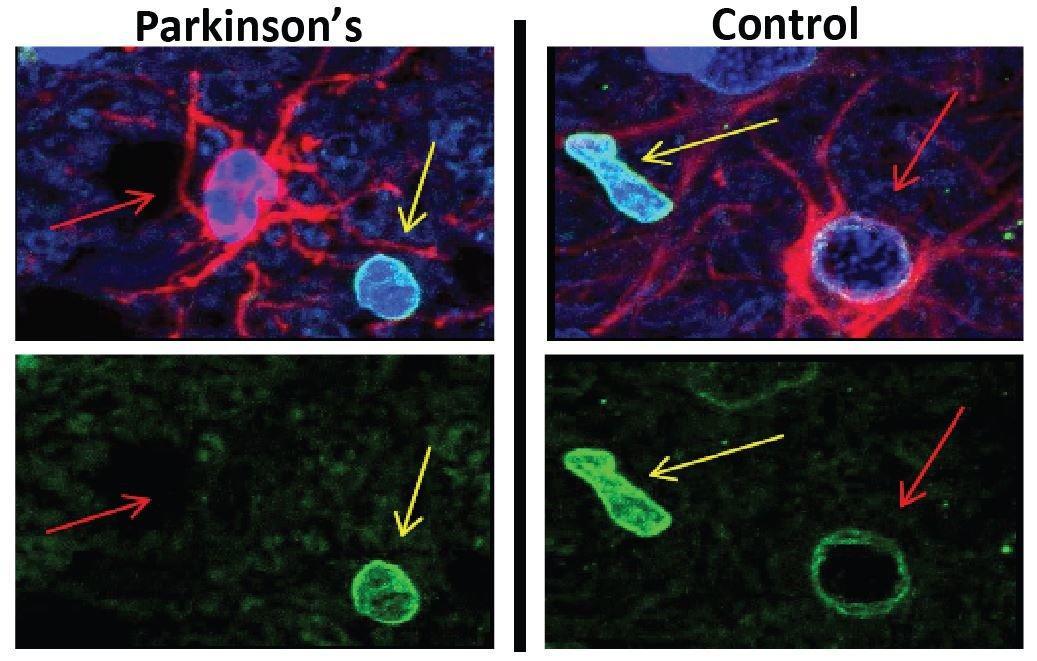 В болезни Паркинсона виновато старение астроцитов