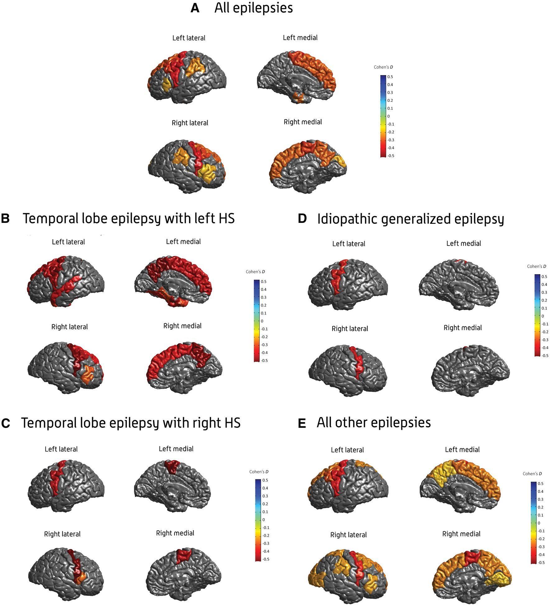 Найдена связь между эпилепсией и объемом и толщиной мозга