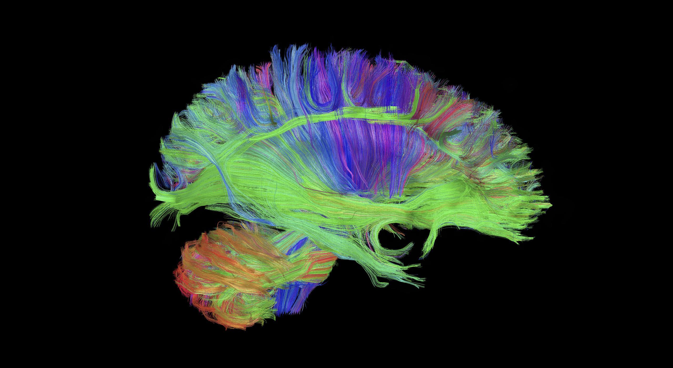 А ваш мозг «гибкий»? Тракты покажут!