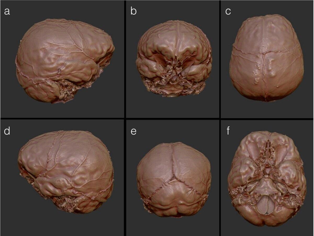 Декартов мозг