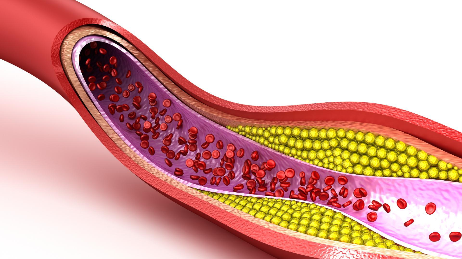 Как стресс закупоривает артерии