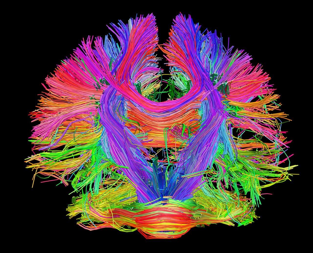 А ваш мозг «гибкий»