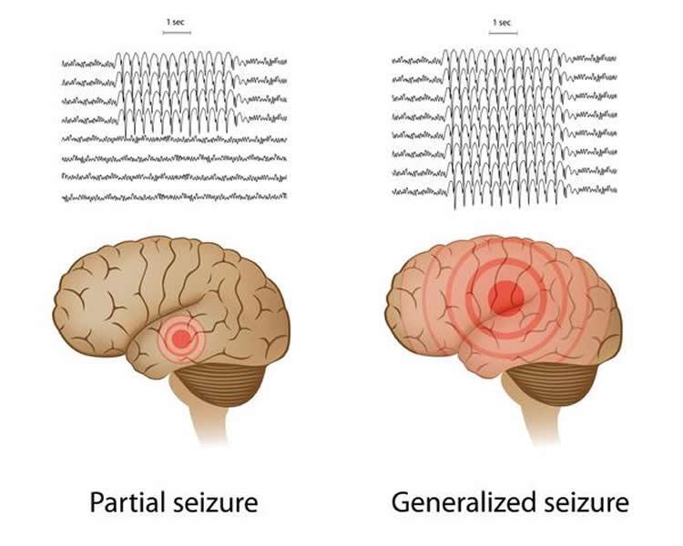 у эпилепсии депрессивное лицо