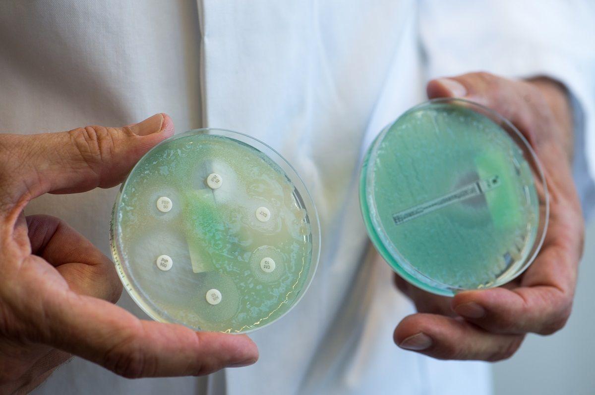 Супербактериям не дадут обмениваться генами устойчивости к антибиотикам