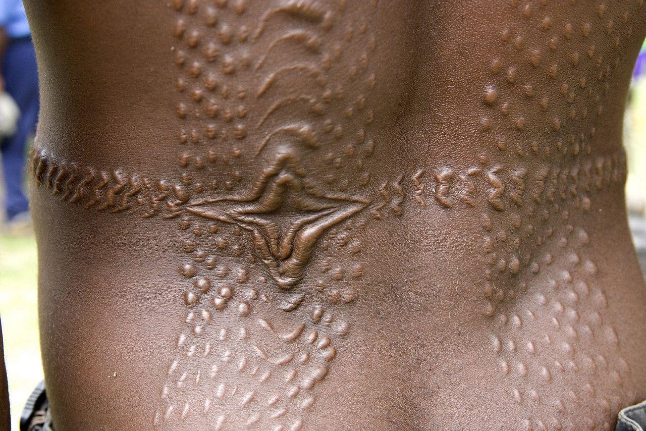 Средство профилактики шрамов нашли в волосяных луковицах