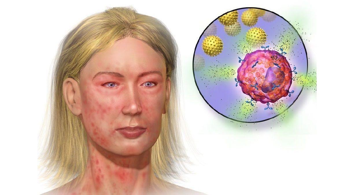 Особые антитела остановят аллергию до её проявления