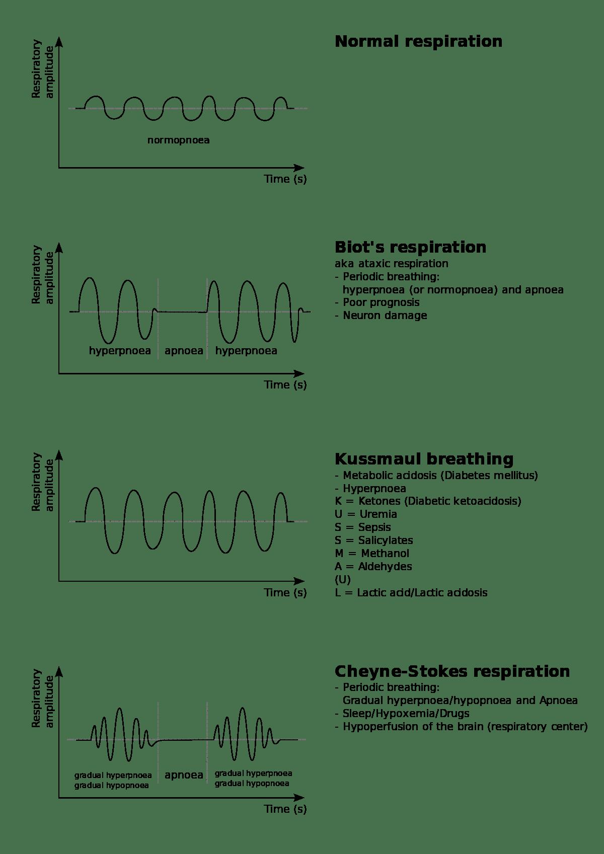 Патологии дыхания в сравнении с нормой (вверху)