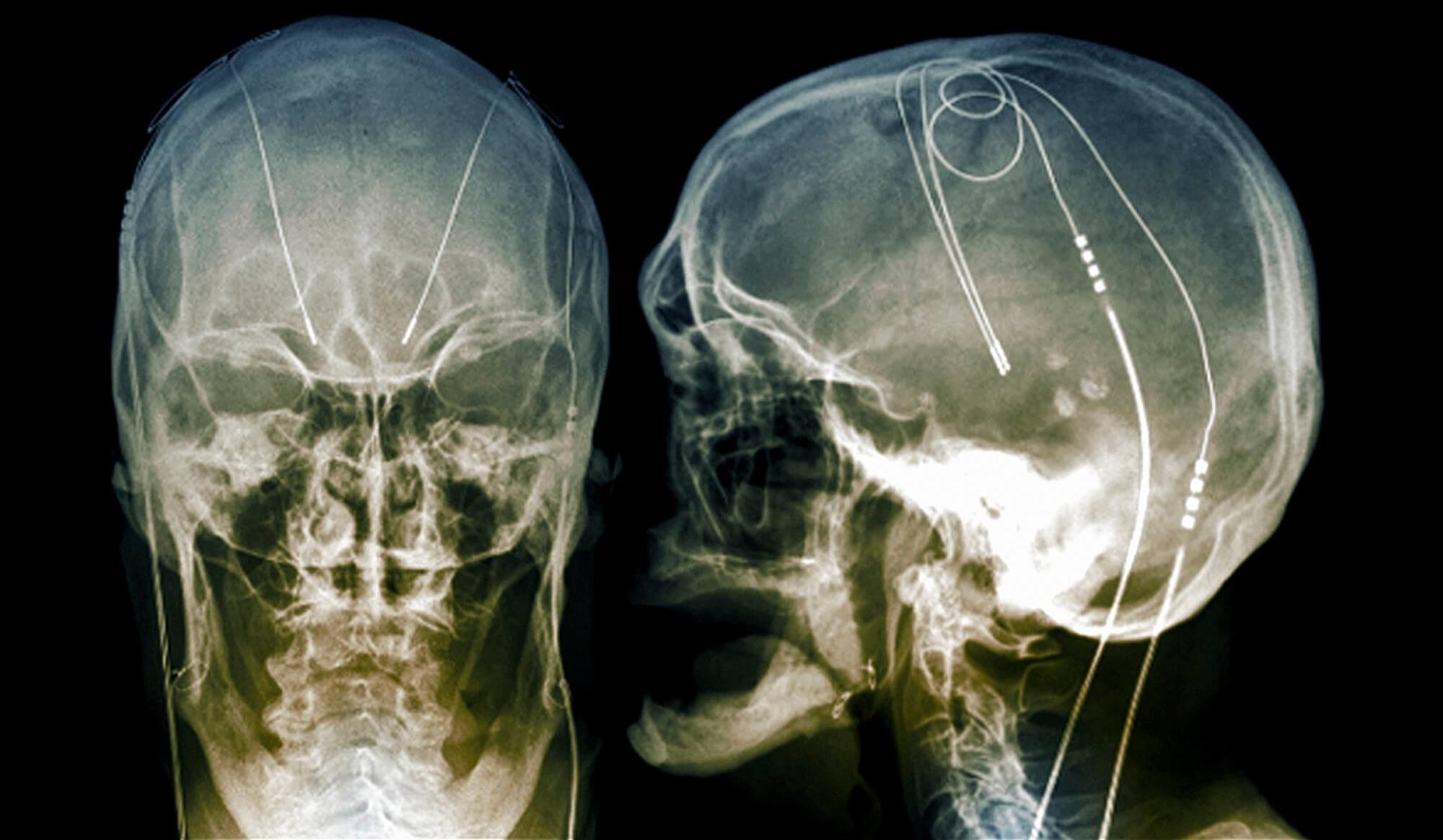 Глубокая стимуляция мозга и синдром Туретта