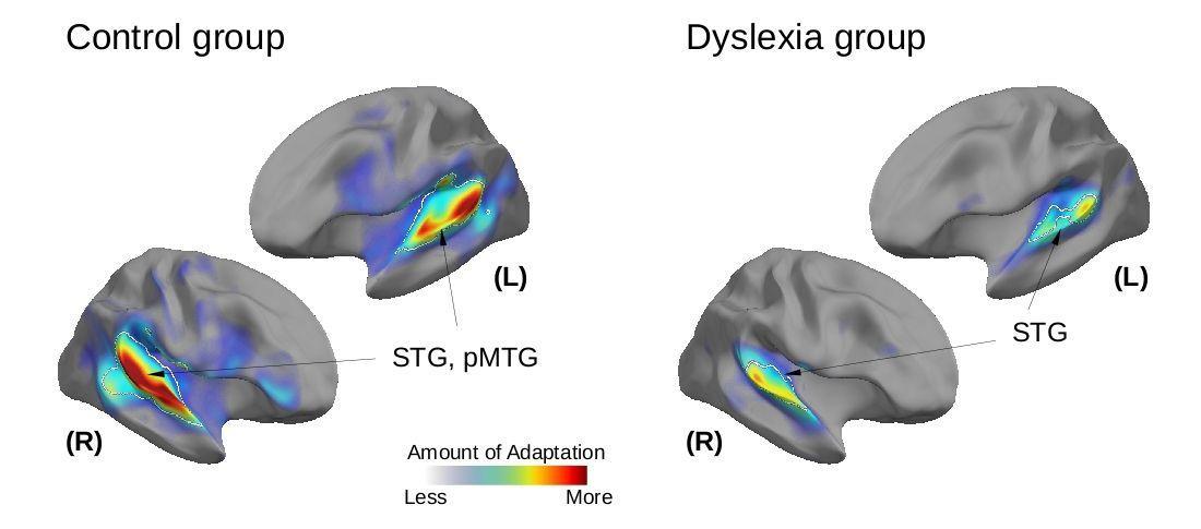 Дислексию объяснили пониженной пластичностью мозга