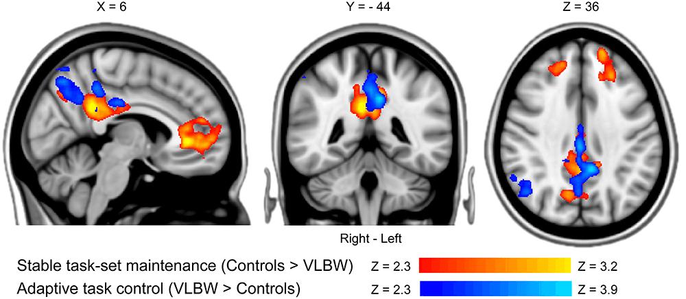 Как низкий вес при рождении влияет на развитие мозга