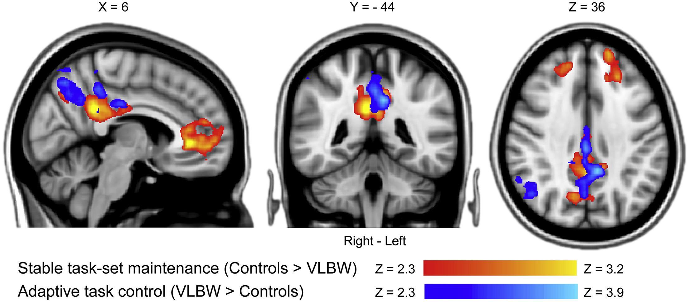 Как низкий вес при рождении влияет на развитие мозга?