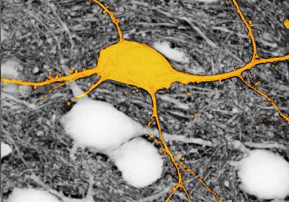 Все клетки целой области мозга смогут визуализировать, благодаря новому методу
