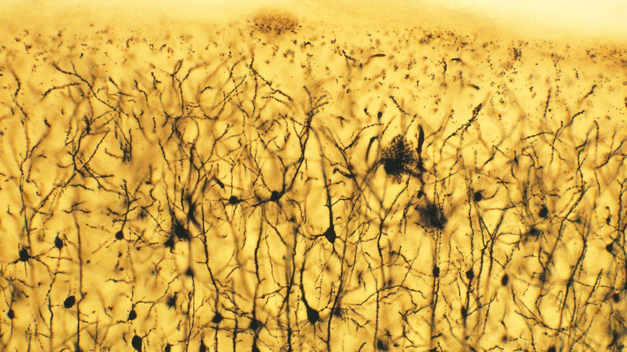 Профили экспрессии генов «уравняли» шизофрению и биполярное расстройство