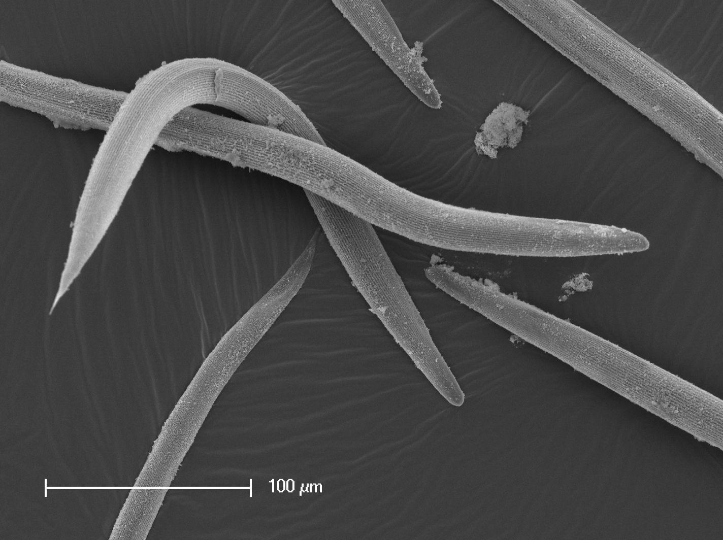 У червей нашли новый тип возбудимых клеток