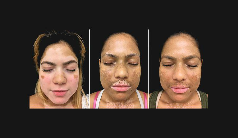 research paper on vitiligo Vitiligo is a long-term skin problem that produces white patches of research into potential cures or treatments for paper or report: mla.