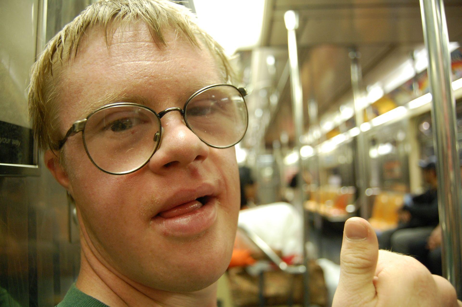 Биоинженеры смогли выключить хромосому, ответственную за синдром Дауна