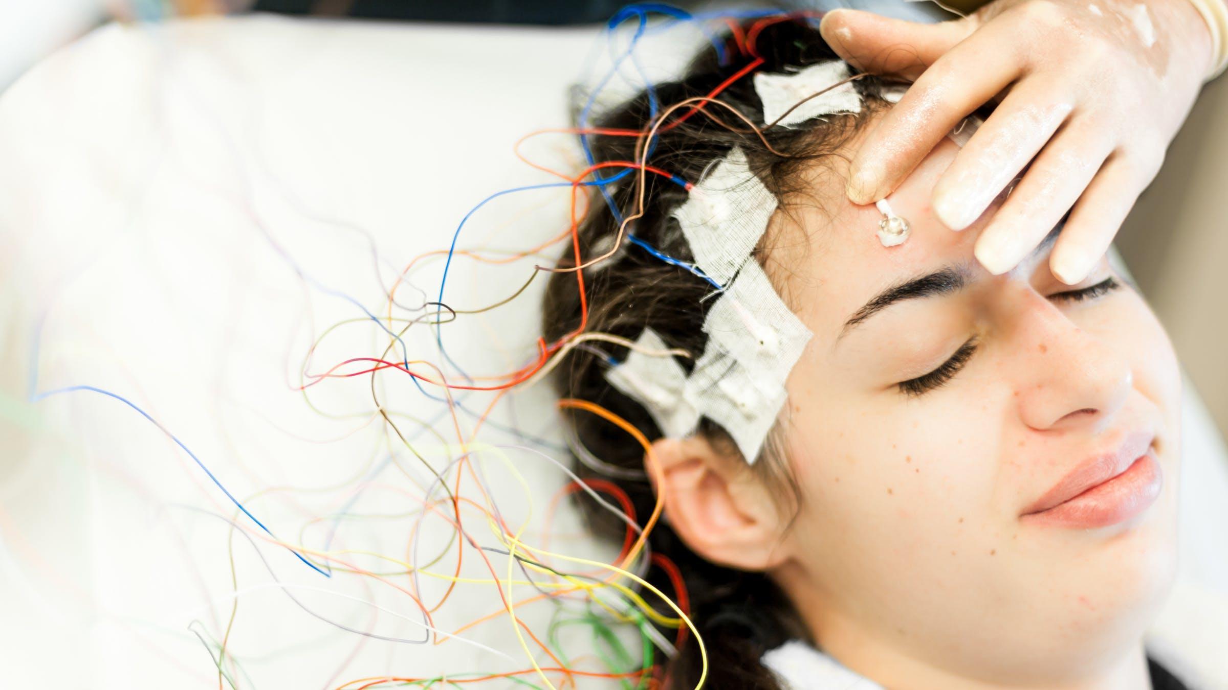Чип предскажет приступ эпилепсии