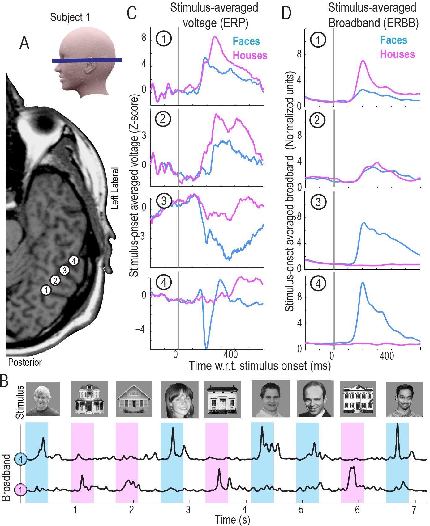 Как считать мысли у эпилептика