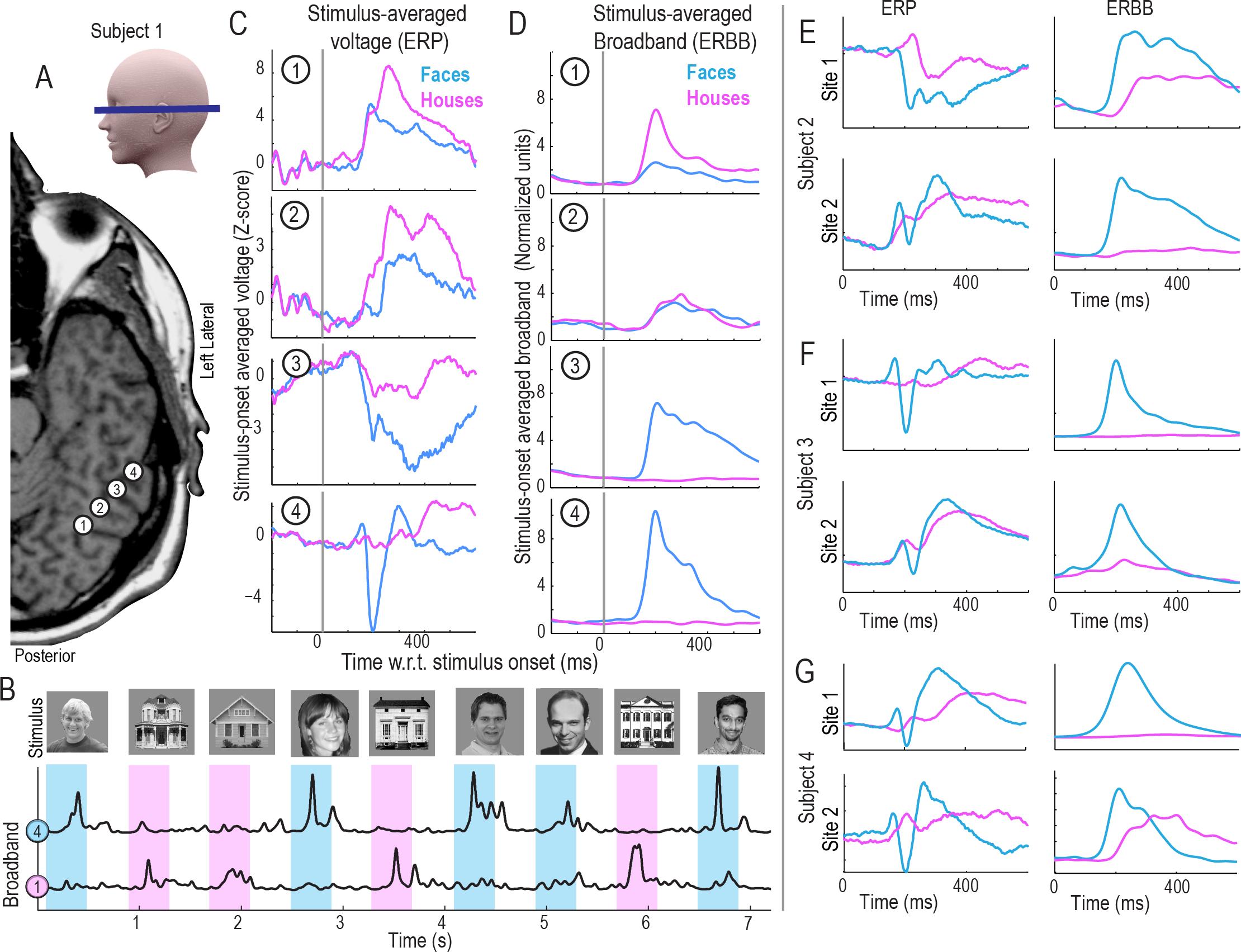 Как считать мысли у эпилептика?