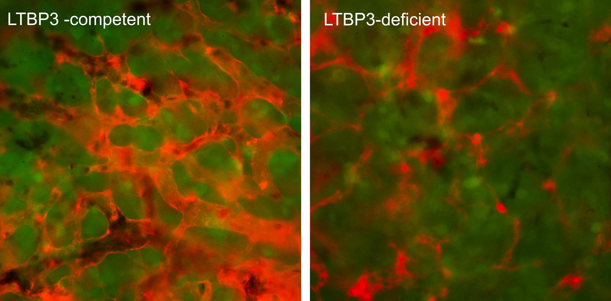 Найден способ остановить метастазирование рака на самых ранних этапах