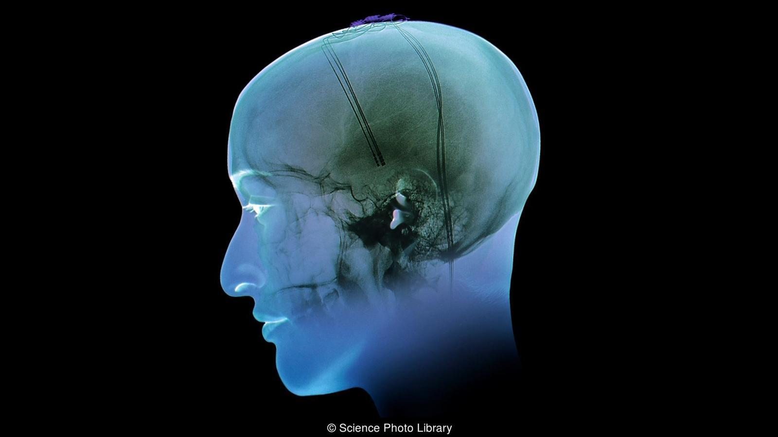 Электроды в мозг: можно ли лечить ожирение так