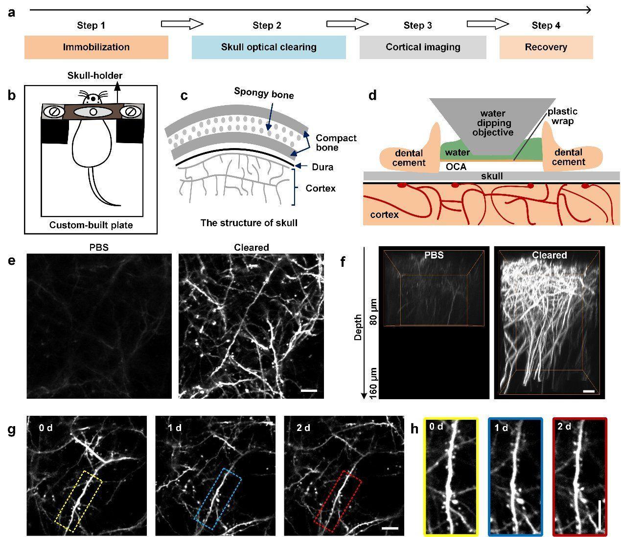 В Китае создали прозрачное окно в мозг