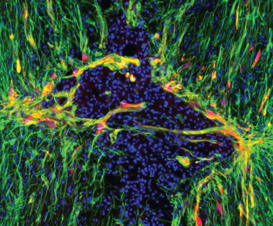 Генетическое «лекарство» для травм головного и спинного мозга