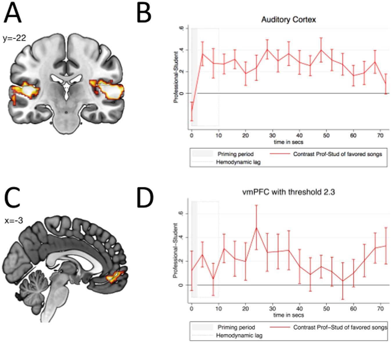 Как мозг реагирует на когнитивные искажения в музыке