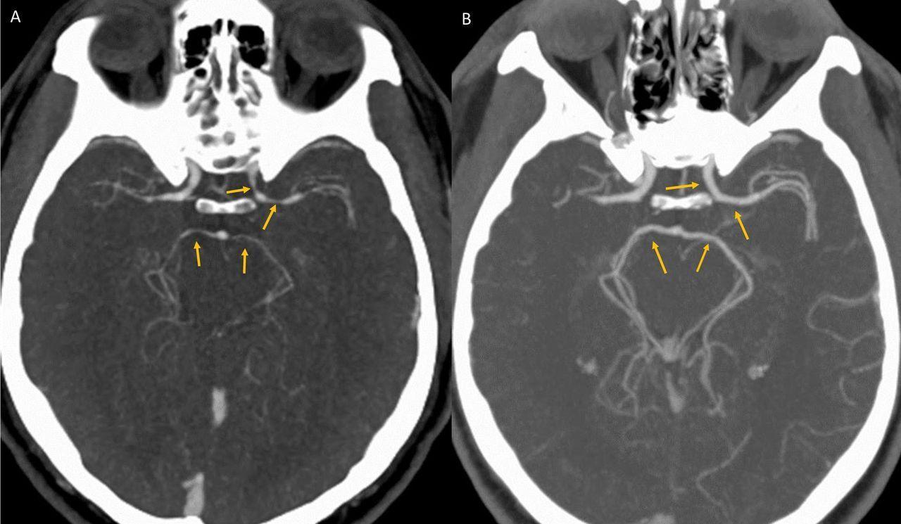 Интересный пациент: от жгучего перца до головной боли