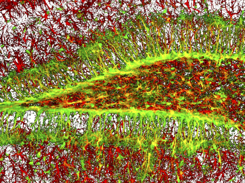 Стволовые клетки мозга обновляются ограниченно