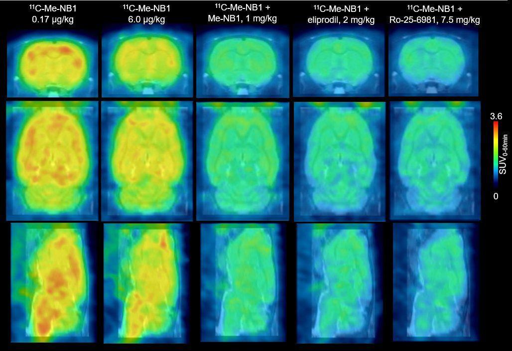 Новый способ «увидеть» рассеянный склероз и другие проблемы