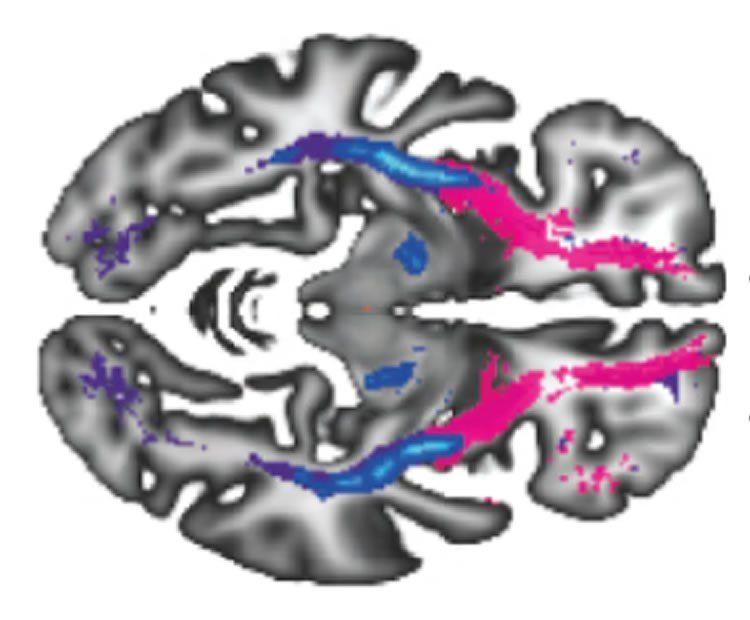 Рисунок связей в головном мозге предскажет психиатрические заболевания