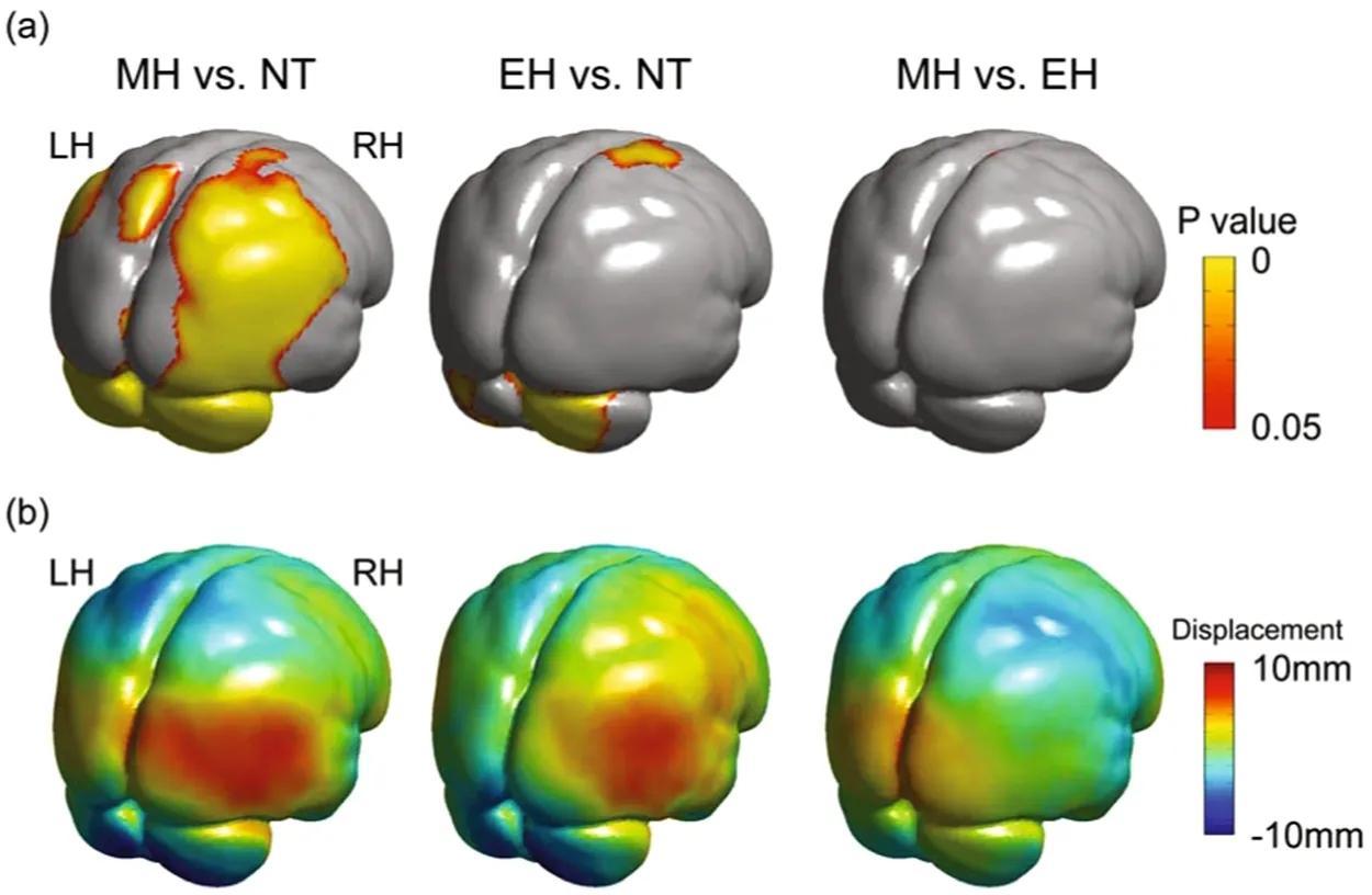 В исчезновении неандертальцев «виноват» размер мозжечка