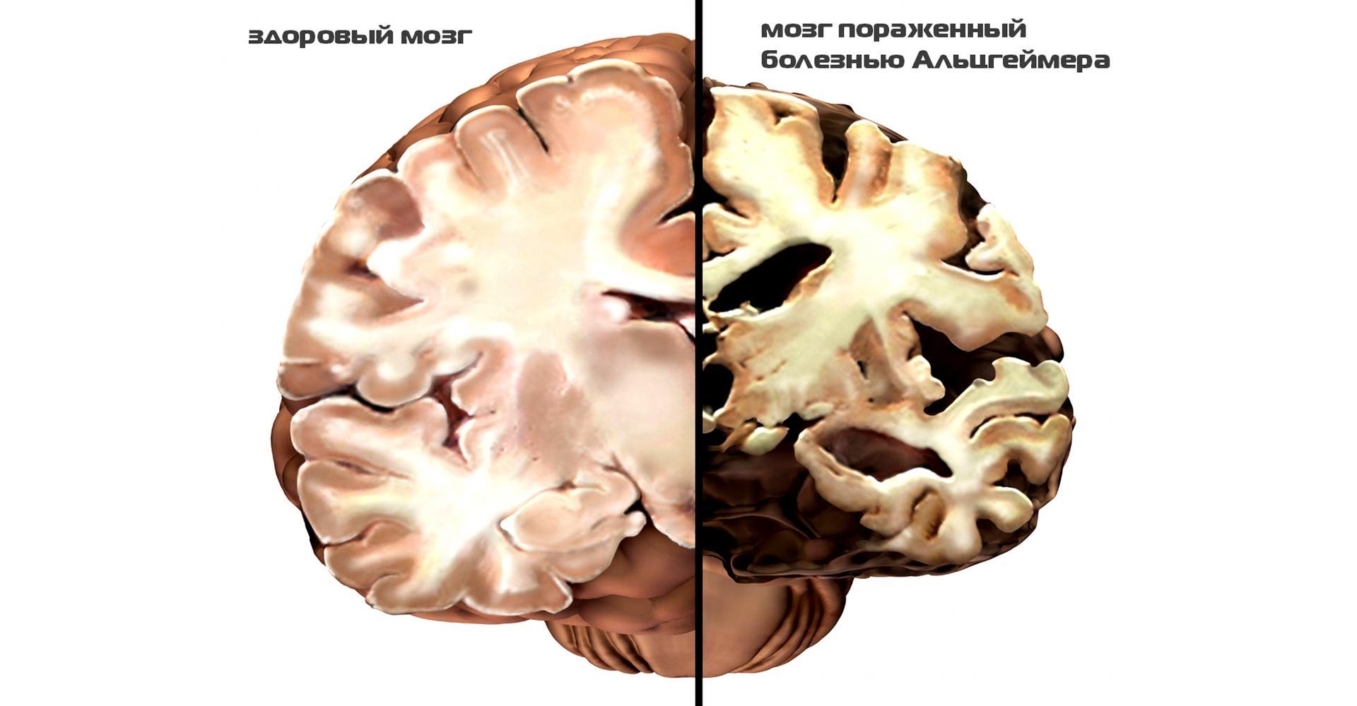 Что общего у болезни Альцгеймера и сахарного диабета?