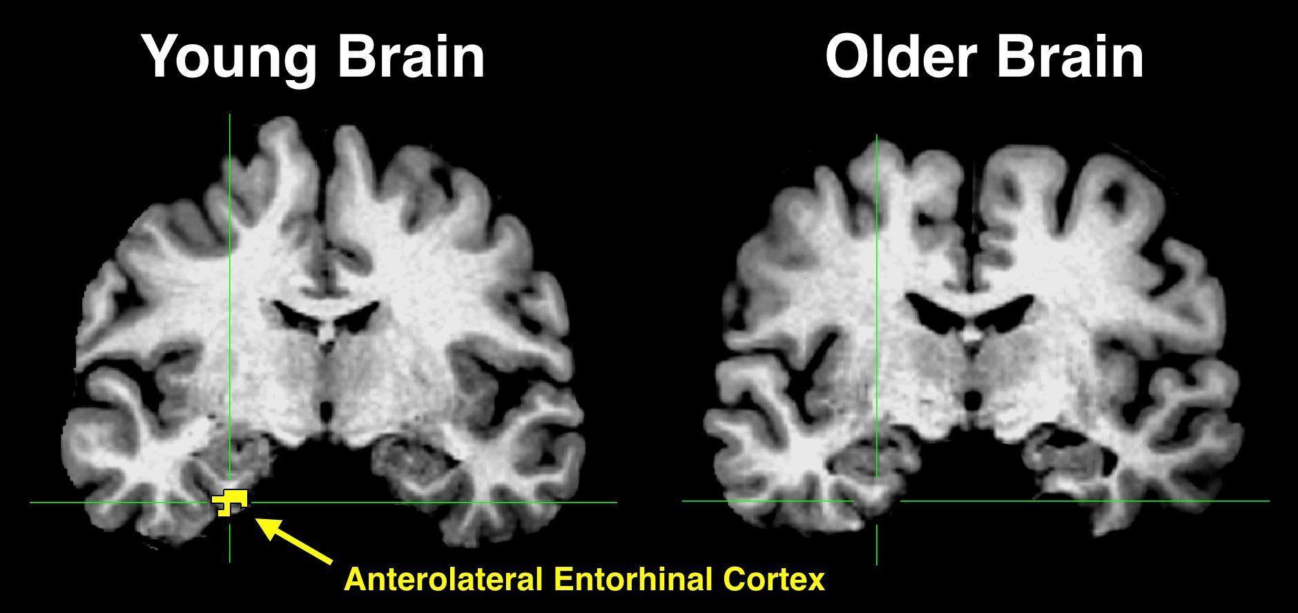 Чем старый мозг забывает?