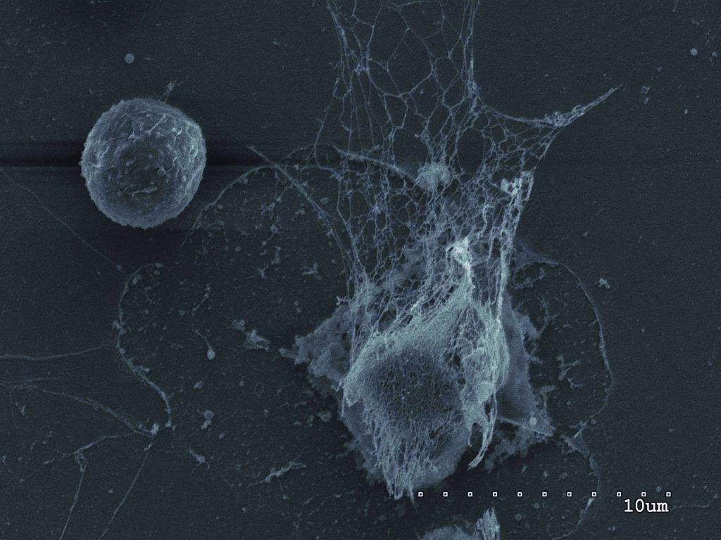 Иммунные ДНК-сети помогают раку метастазировать