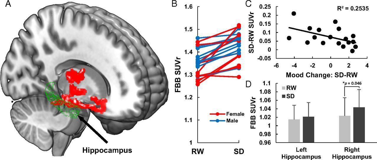 Единственная бессонная ночь увеличила количество бета-амилоида в мозге