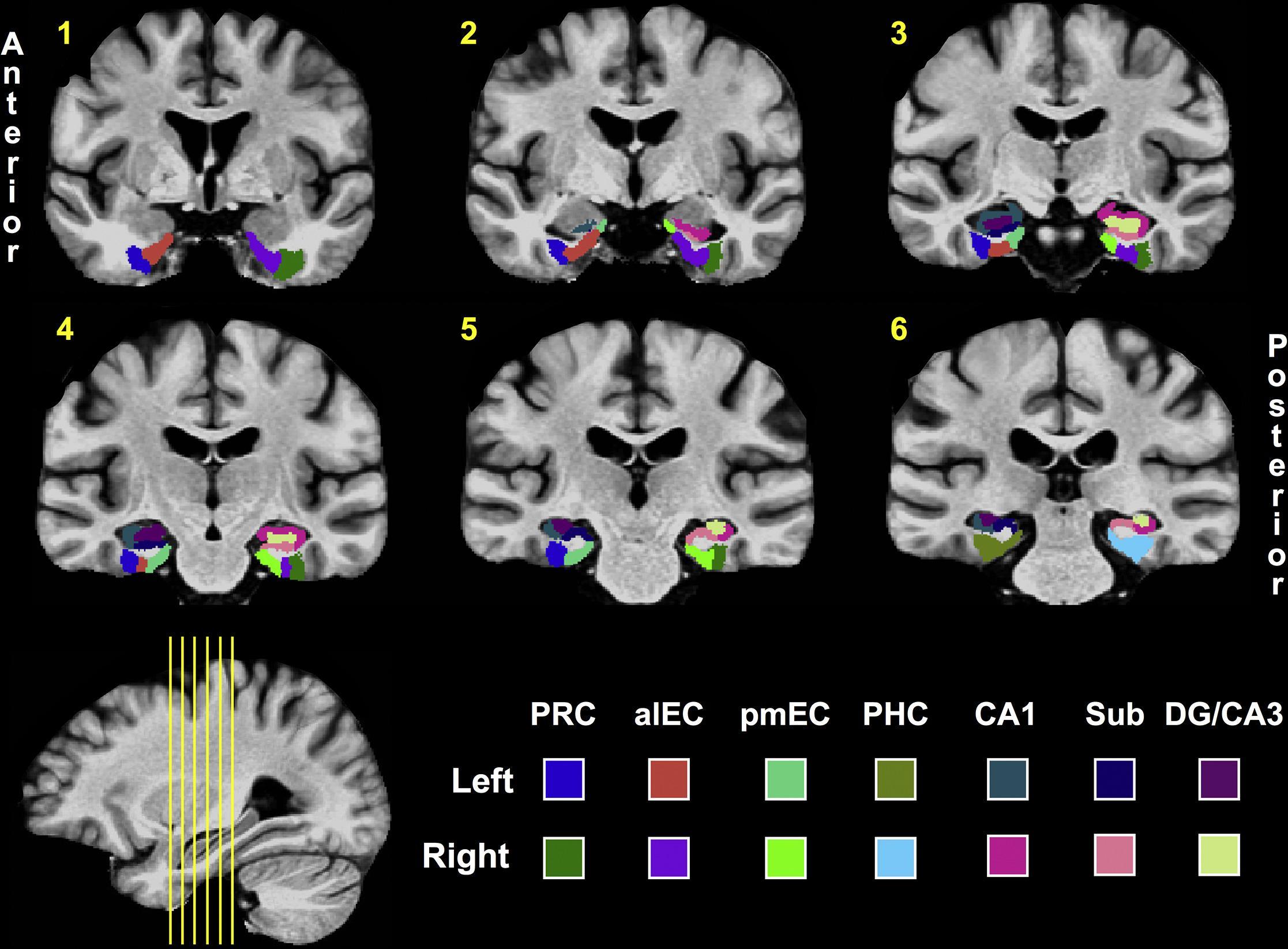 Разница в нарушениях памяти предскажет возможную болезнь Альцгеймера