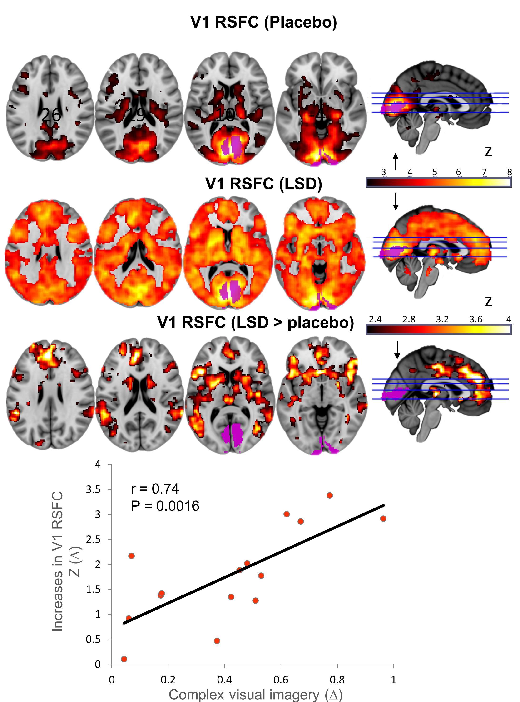 Различие в связях первичной зрительной коры с остальным мозгом при ЛСД и плацебо