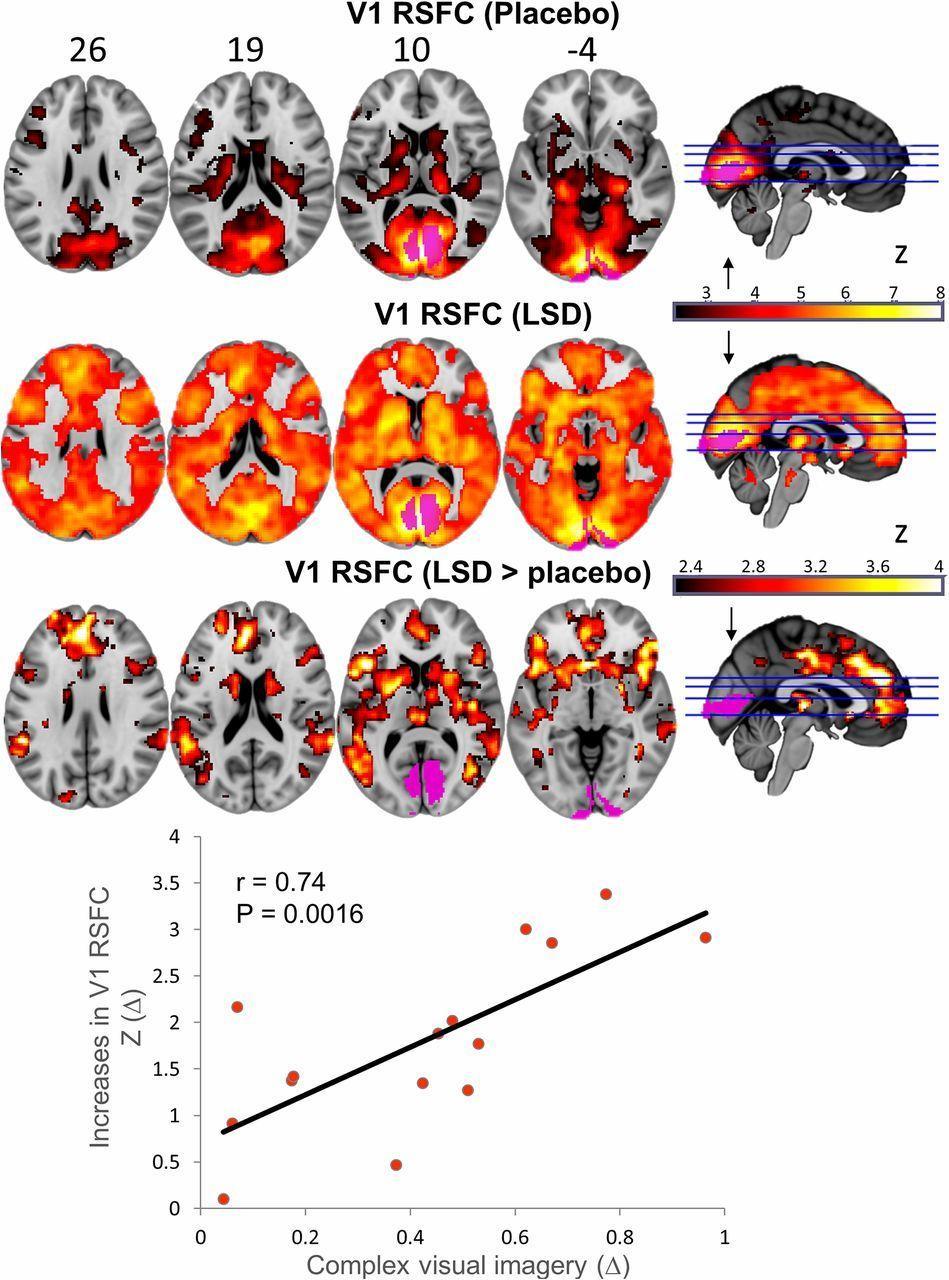 Что ЛСД делает с мозгом