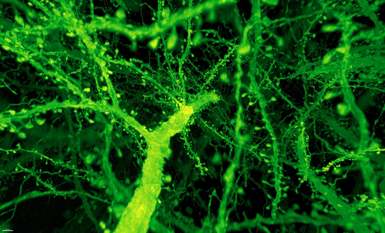 Найдена новая мишень для лечения нейропатических болей