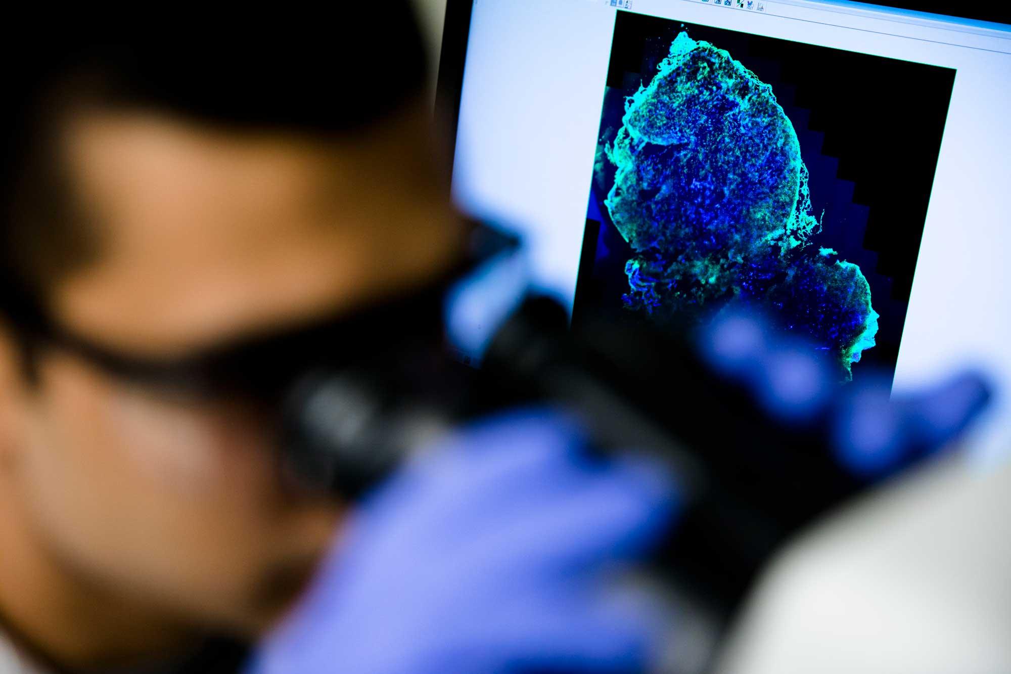 Новое слово в диагностике рака груди