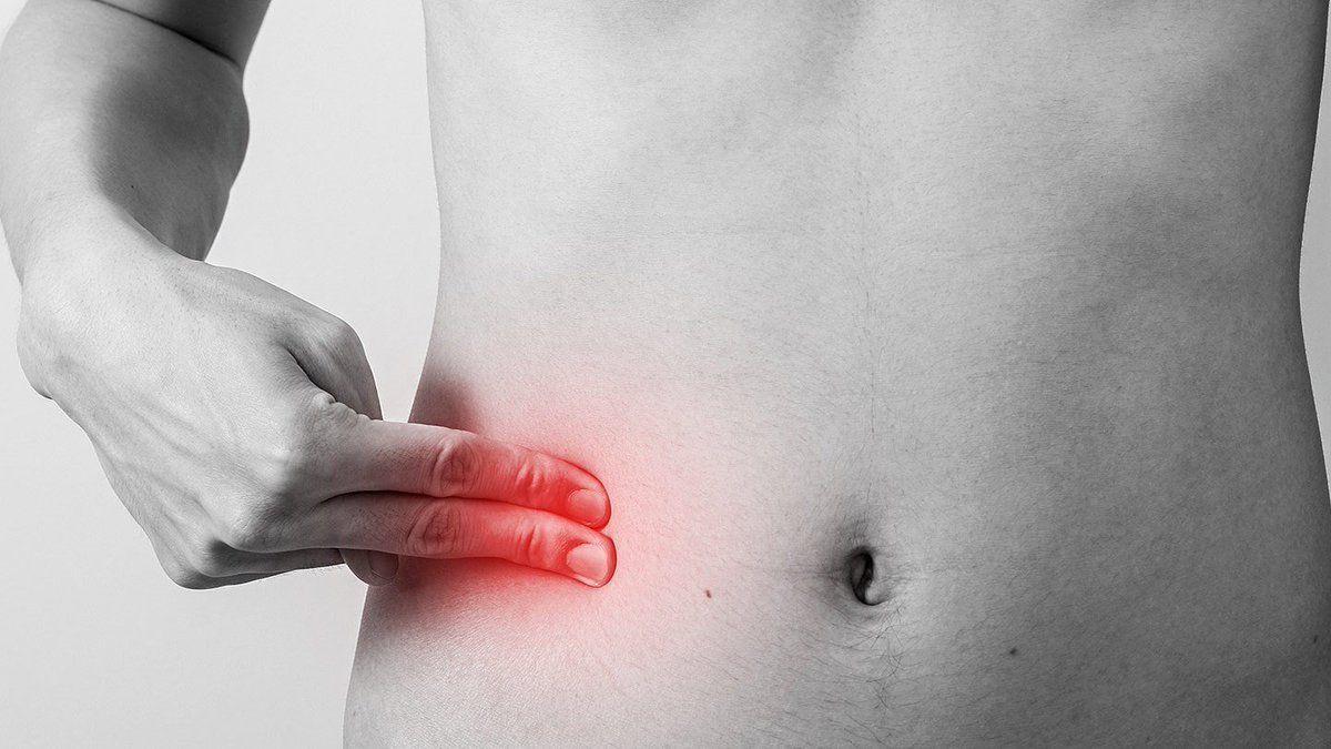 Перенесенный в детстве аппендицит увеличивает риск рака простаты