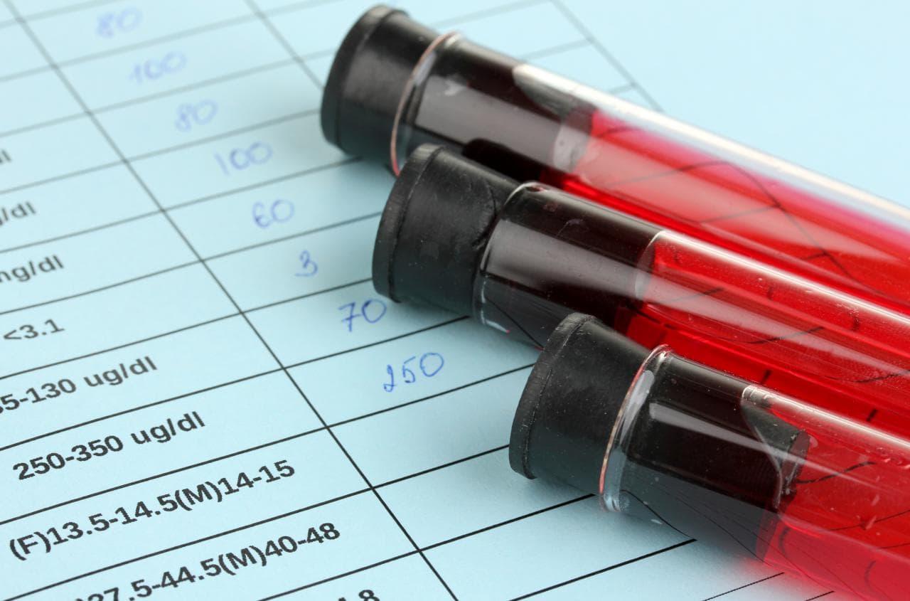 В Оренбурге ВИЧ лечат «на глаз»