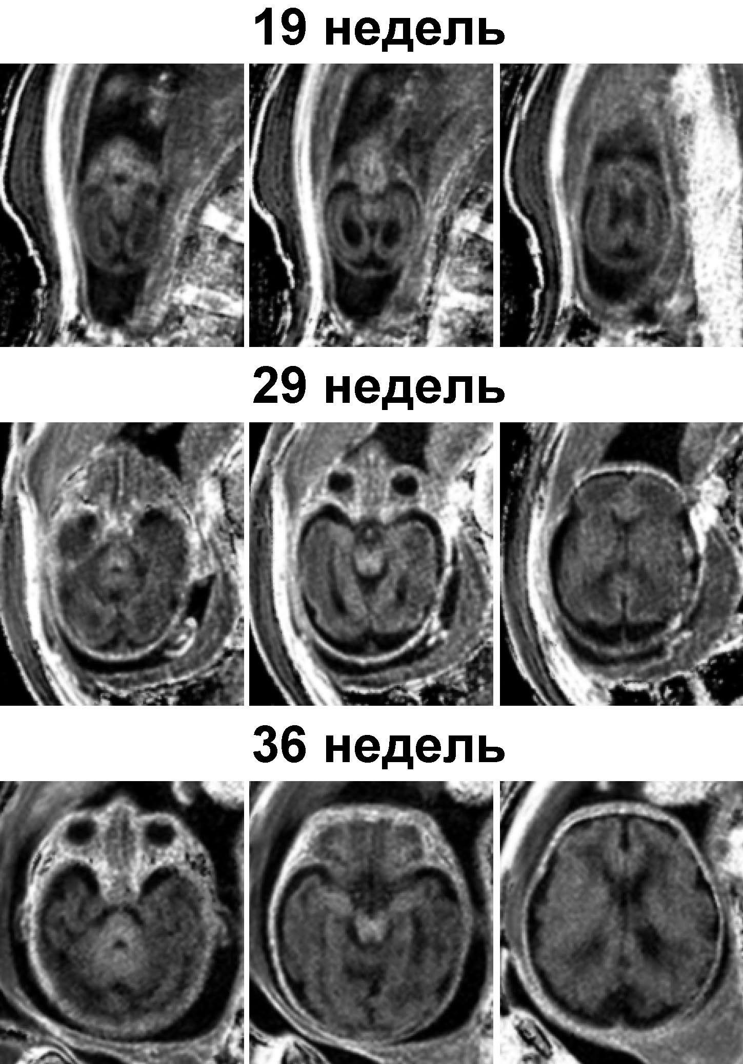 Создан метод измерения миелина в мозге плода в утробе матери