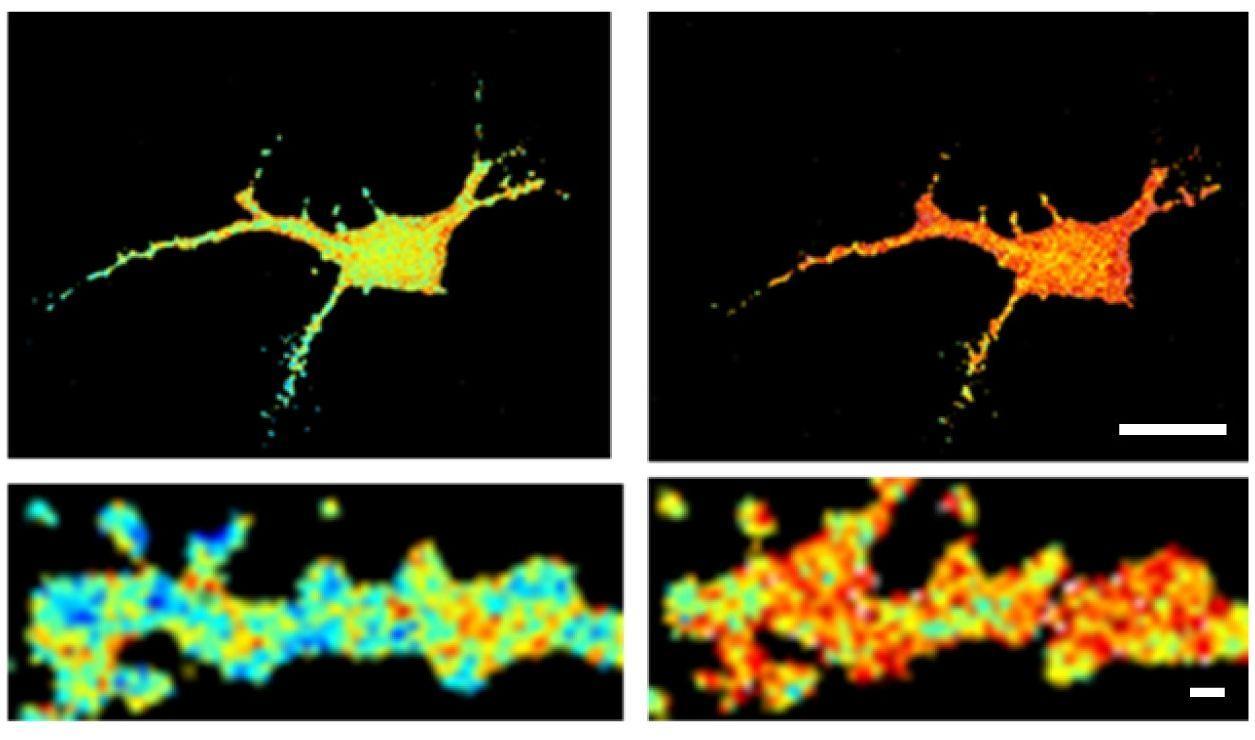 как агрегация бета-амилоида влияет на работу нейронов