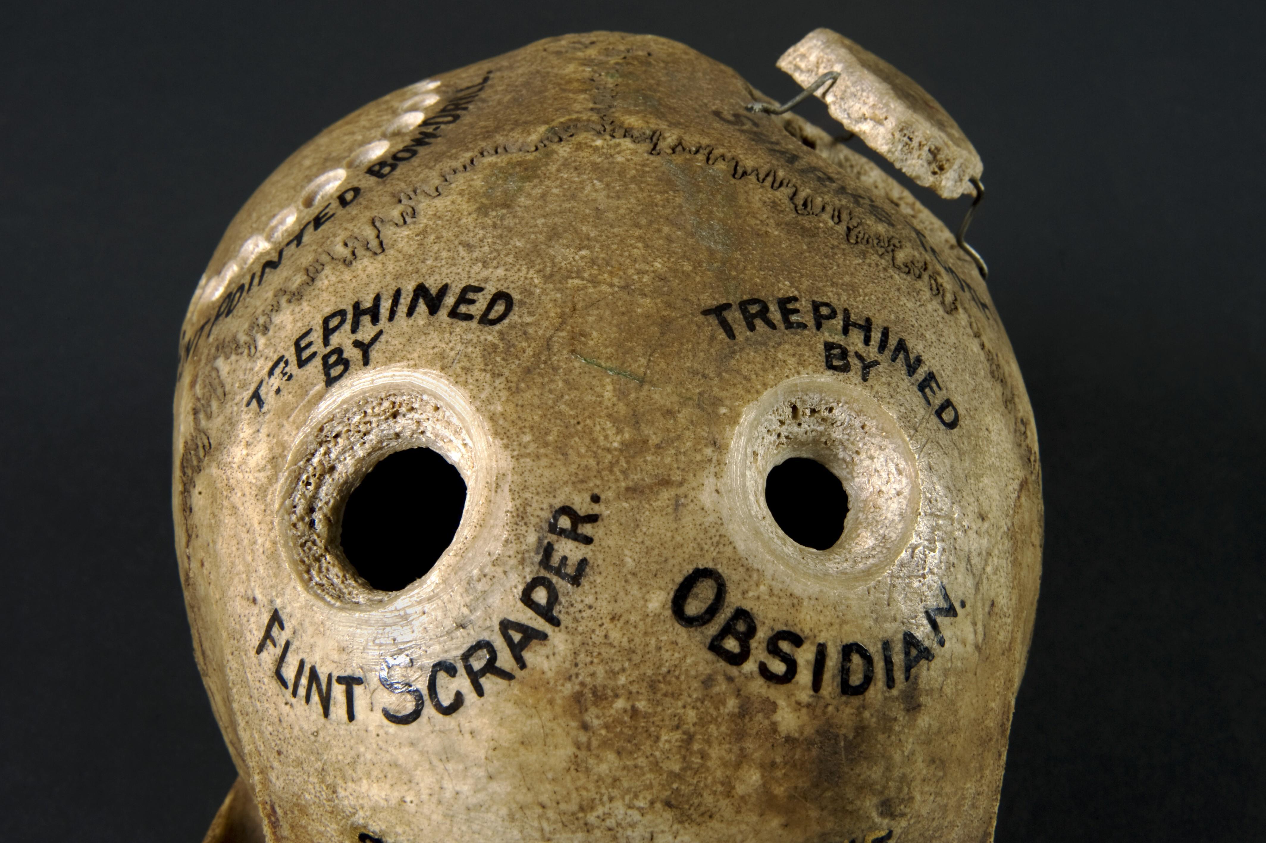 С дырочкой в левом боку. Ископаемые кости рассказывают историю самой древней операции