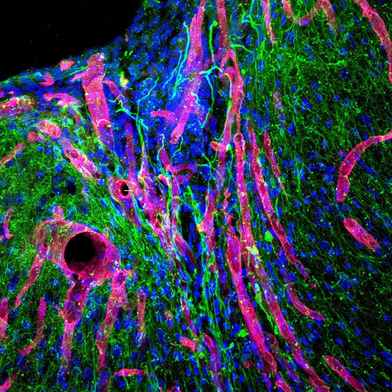 Новый биоинженерный гель помогает мозгу восстановиться после инсульта