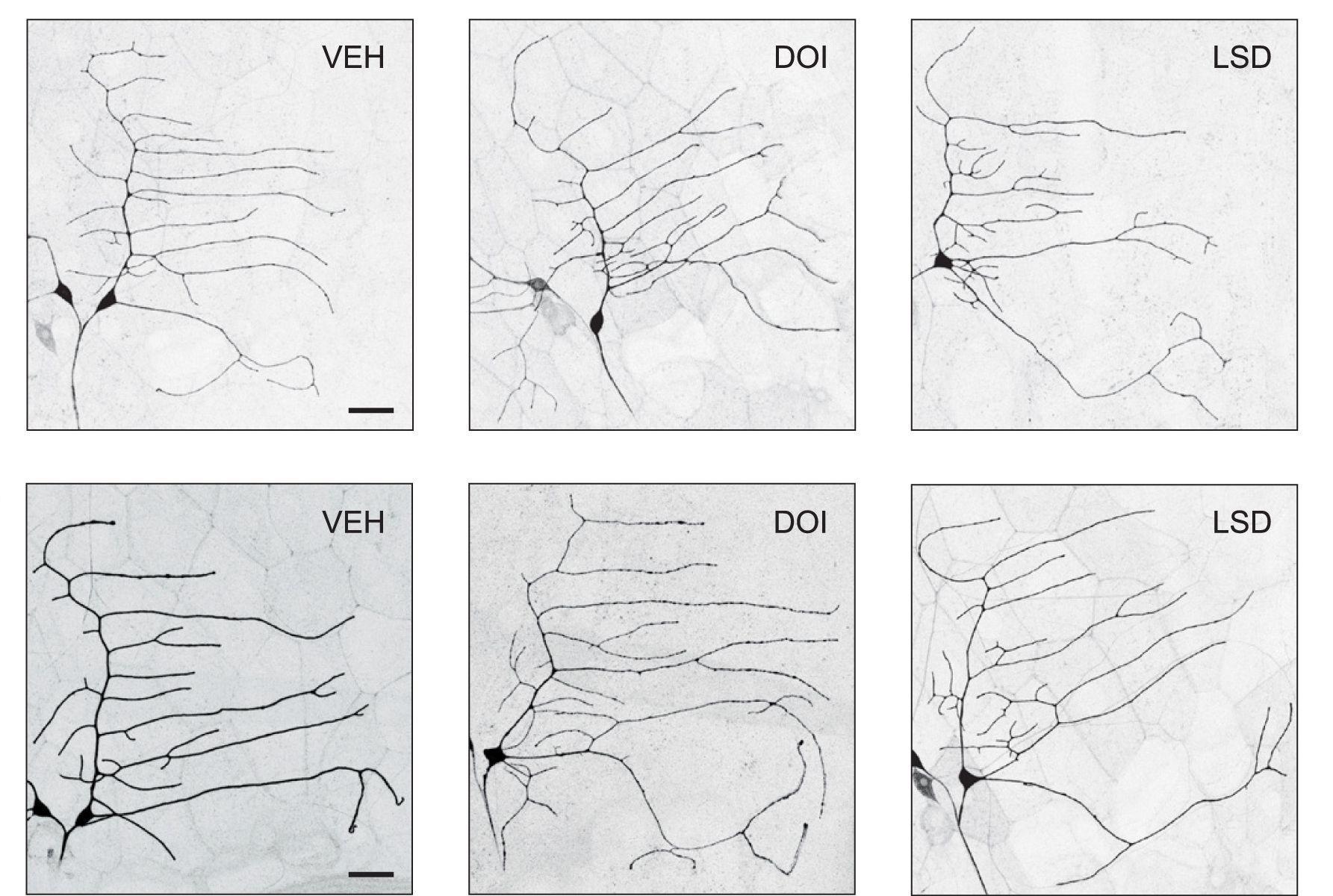Психоделики помогли нейронам вырасти длинными и ветвистыми